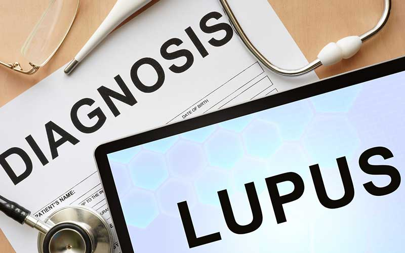 how do you get lupus