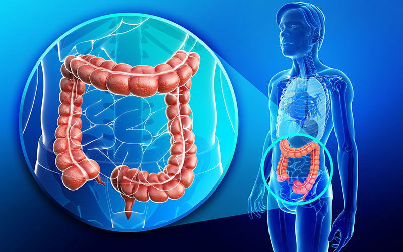 colon cancer symptoms, treatment, diagnosis and stages