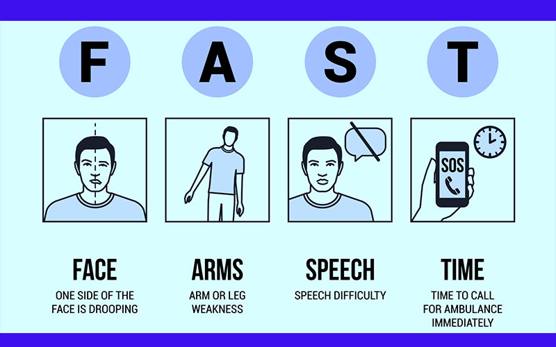 stroke-fast-means