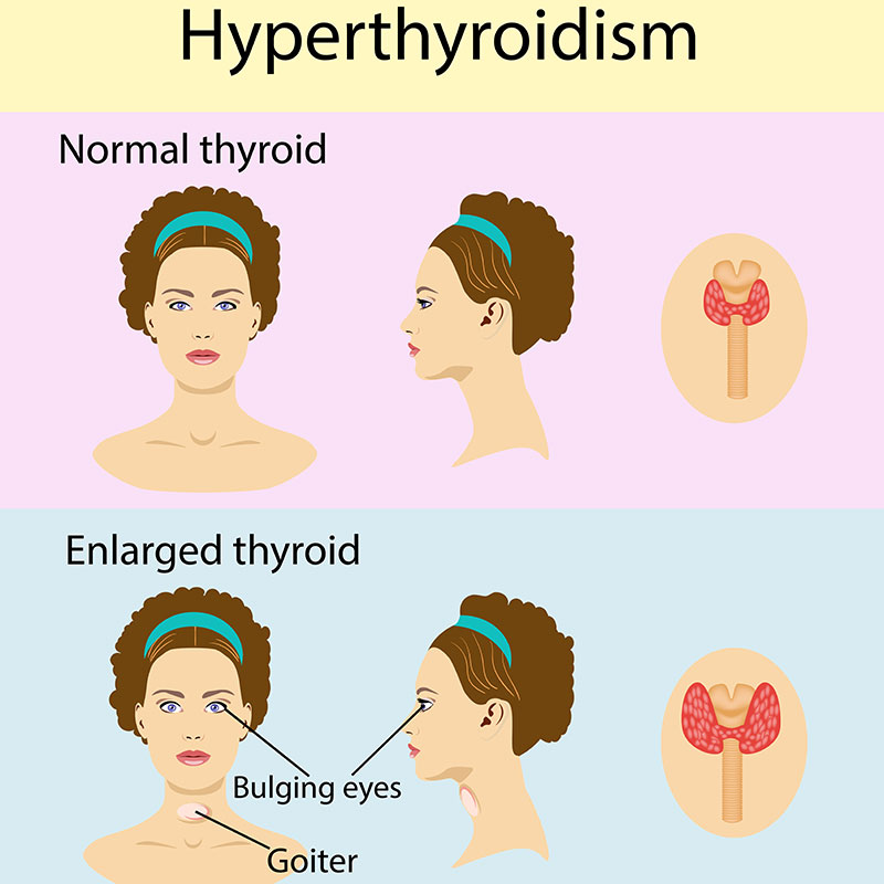 what is hyperthyroidism