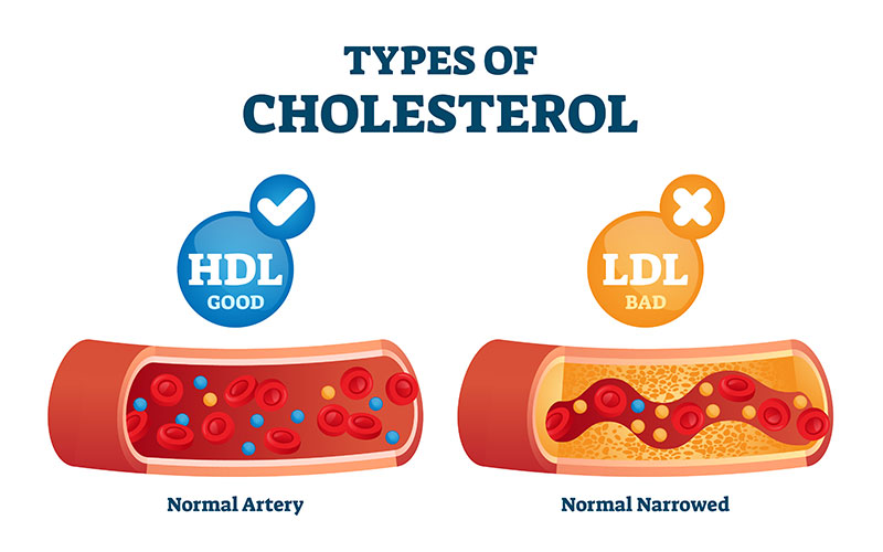 Types-of-Cholesterol