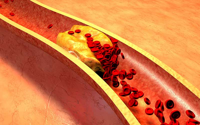 high cholesterol symptoms risk factors and treatment