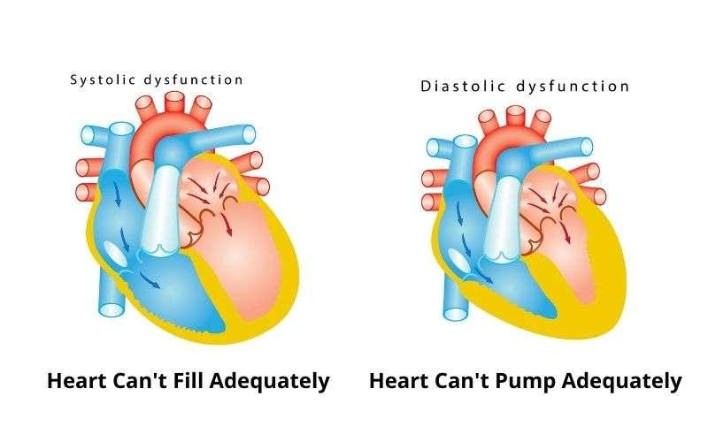 systolic vs diastolic heart failure