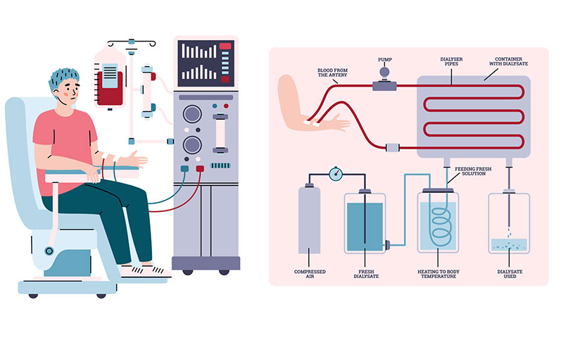 what is hemodialysis